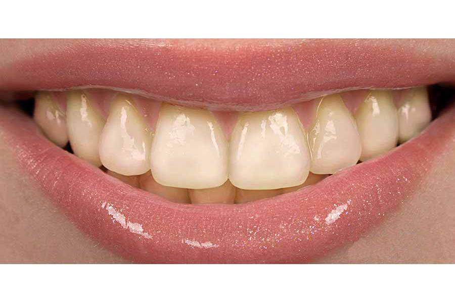 Branqueamento Clinica Medica Dentaria